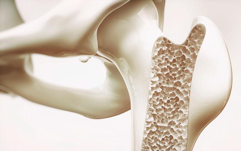 Osteoporosis - spinal kyphosis on gastric myoelectrical
