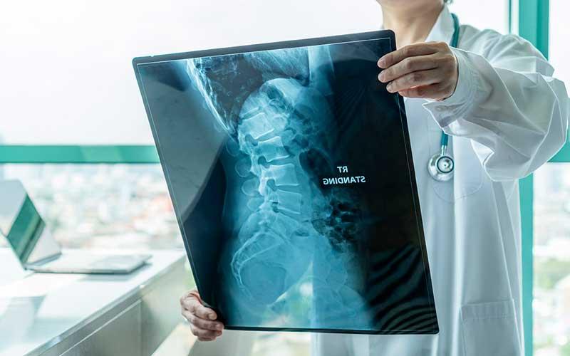 Symptoms of Spinal Stenosis - Spinal Stenosis