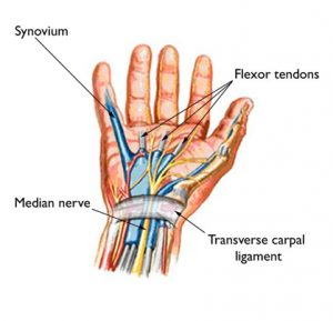 Carpal Tunnel Symptoms and Causes - Symptoms