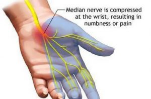 Carpal Tunnel – Syndrome