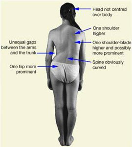 Chiropractic - Scoliosis Treatment