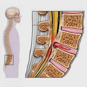 Condiciones - Estenosis Espinal