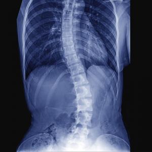 Conditions - Scoliosis