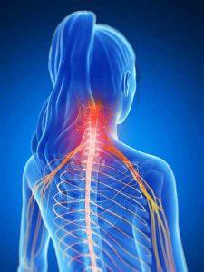 Dolor de Cuello – Síntomas