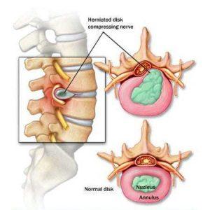 Dolor de Espalda – Síntomas
