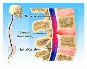 Spinal-Stenosis – Symptoms
