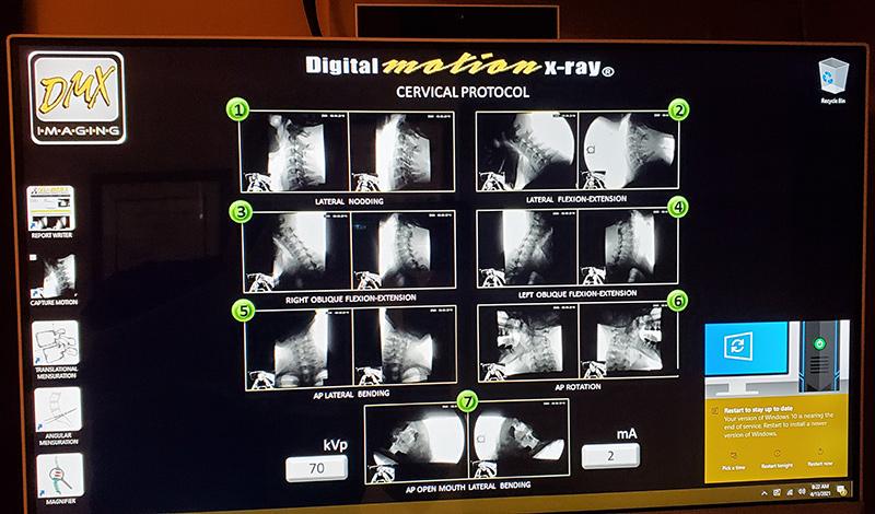 (DMX) Radiografía de movimiento digital - (DMX)