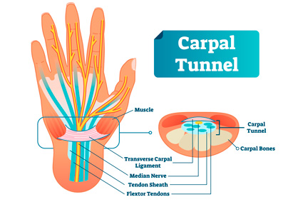 Chiropractor For Carpal Tunnel - chiropractor for carpal tunnel very successful