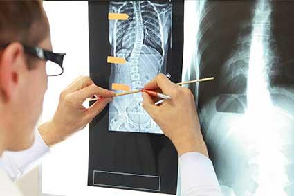 Hechos sobre la escoliosis - patrones posturales más comunes de la escoliosis