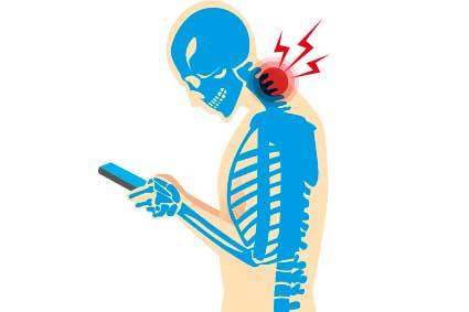 Experience chronic neck pain - CHRONIC NECK PAIN