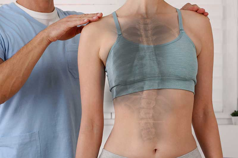 Scoliosis Facts - Scoliosis Facts