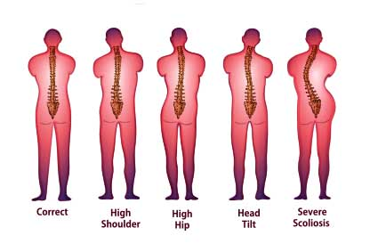 Scoliosis Facts - Observation 10-25 degrees