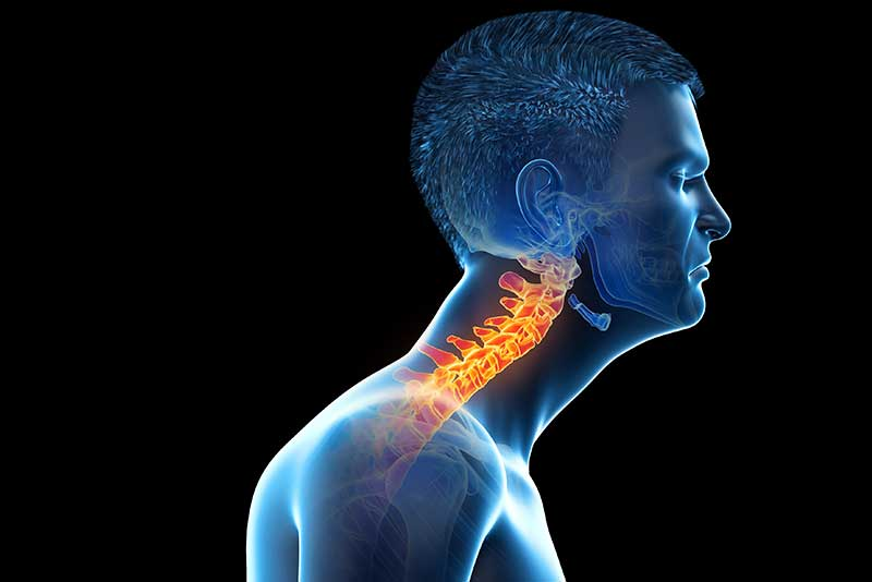 forward head syndrome - forward head syndrome