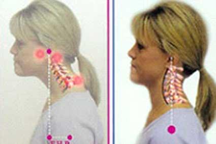 forward head syndrome - Physical Medicine and Rehabilitation