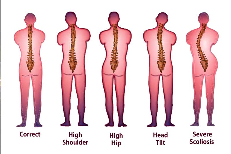 Sunset Chiropractic & Wellness Research Review: Association Between Incorrect Posture and Scoliosis - Association Between Incorrect Posture and Adolescent Idiopathic Scoliosis Among Chinese Adolescents