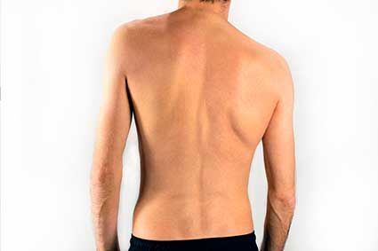 Sunset Chiropractic & Wellness Research Review: Association Between Incorrect Posture and Scoliosis - Posture is the window to the spine and nervous system. Any abnormal postures represent damage or weakened areas of your spine